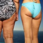 ¿Por qué se forma la Celulitis?