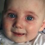 La Neurodermitis otra manera de ver la Dermatitis Atópica