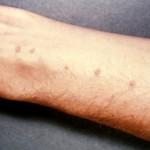 La Dermatitis Atópica en los medios de comunicación